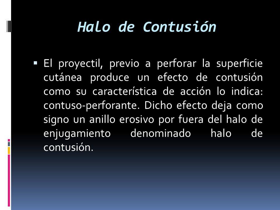 Halo de Contusión