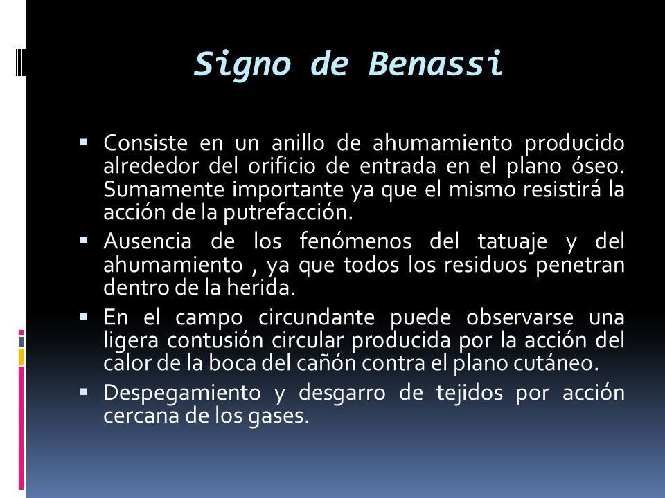 Signo de Benassi