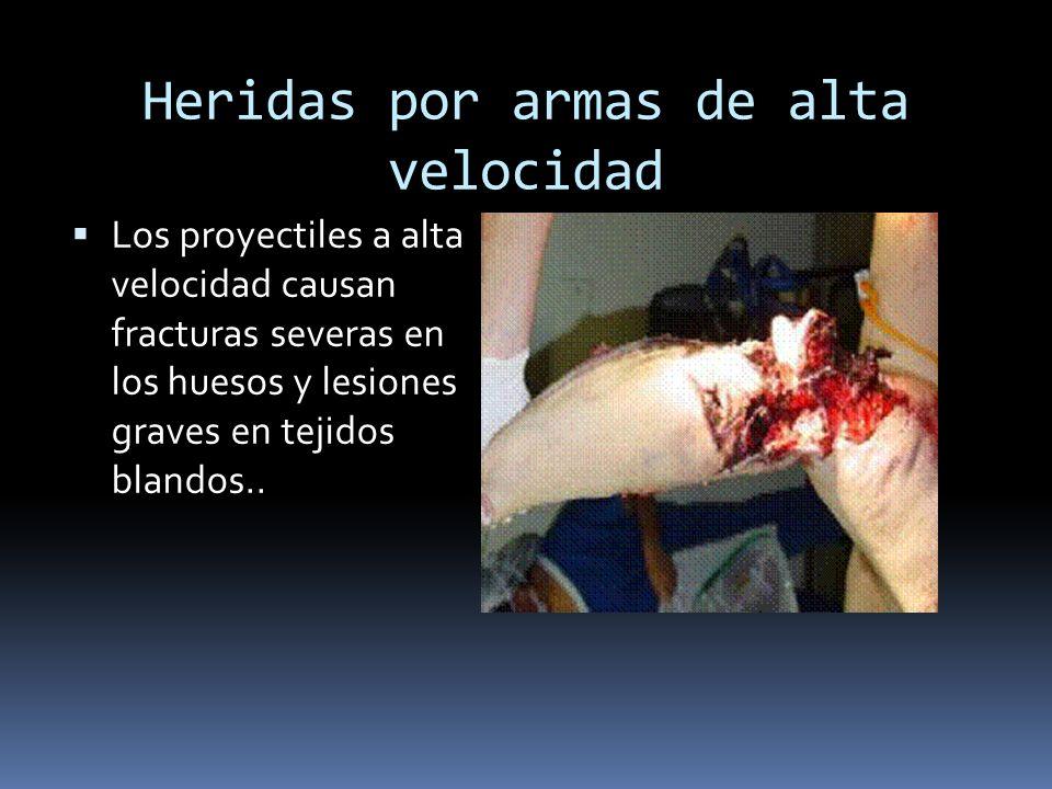 Heridas por armas de alta velocidad