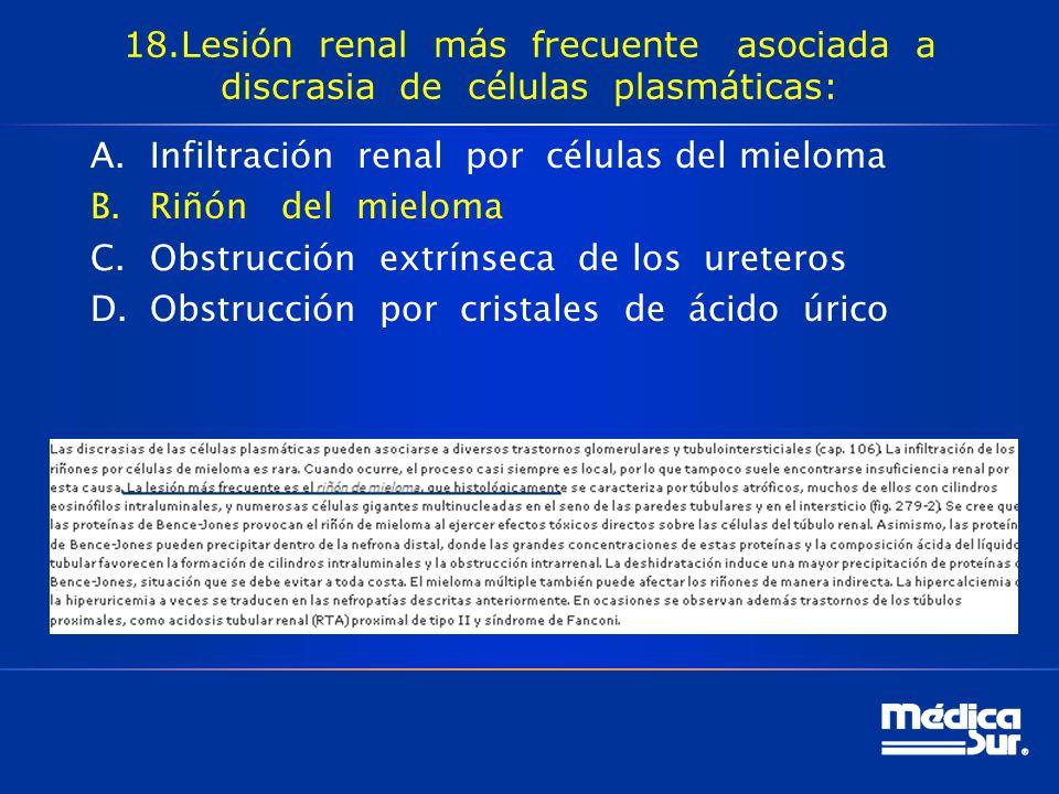 18.Lesión renal más frecuente asociada a discrasia de células plasmáticas: