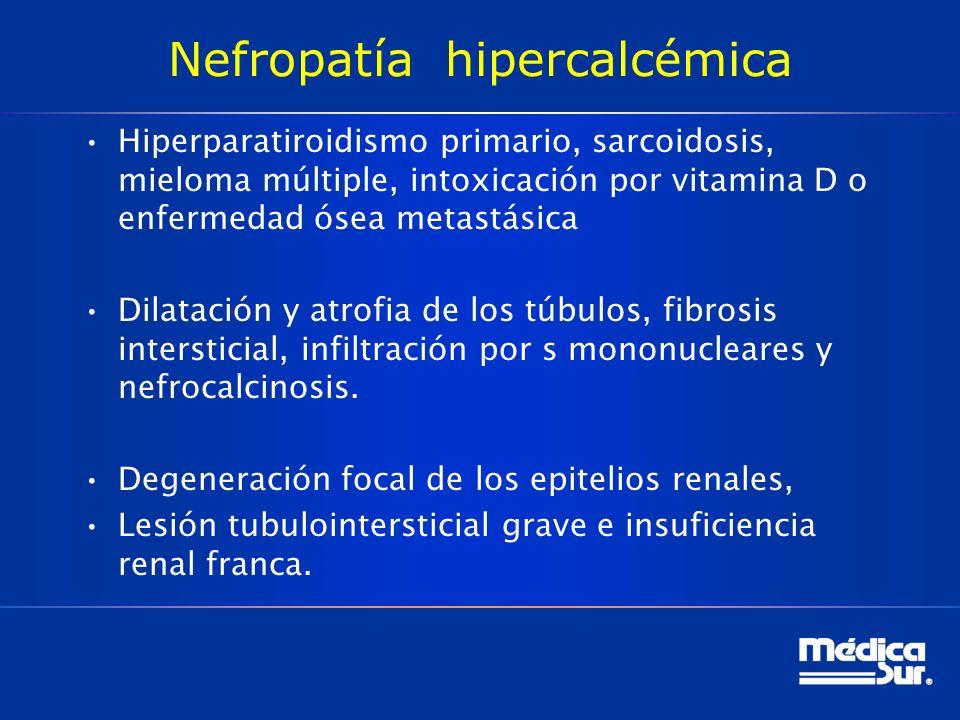 Nefropatía hipercalcémica
