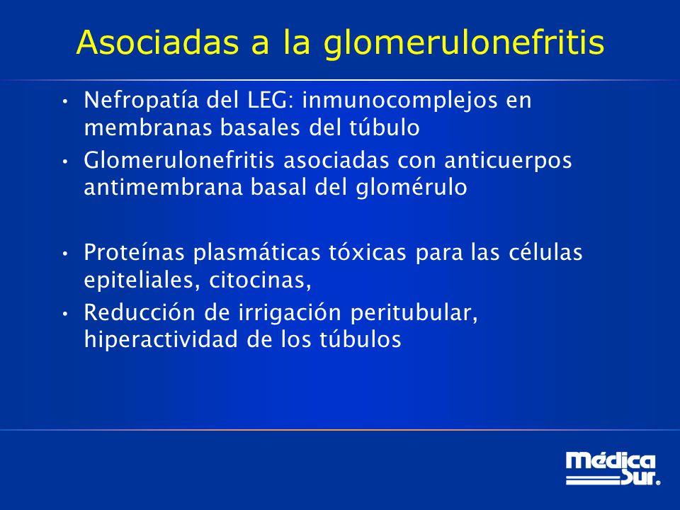 Asociadas a la glomerulonefritis