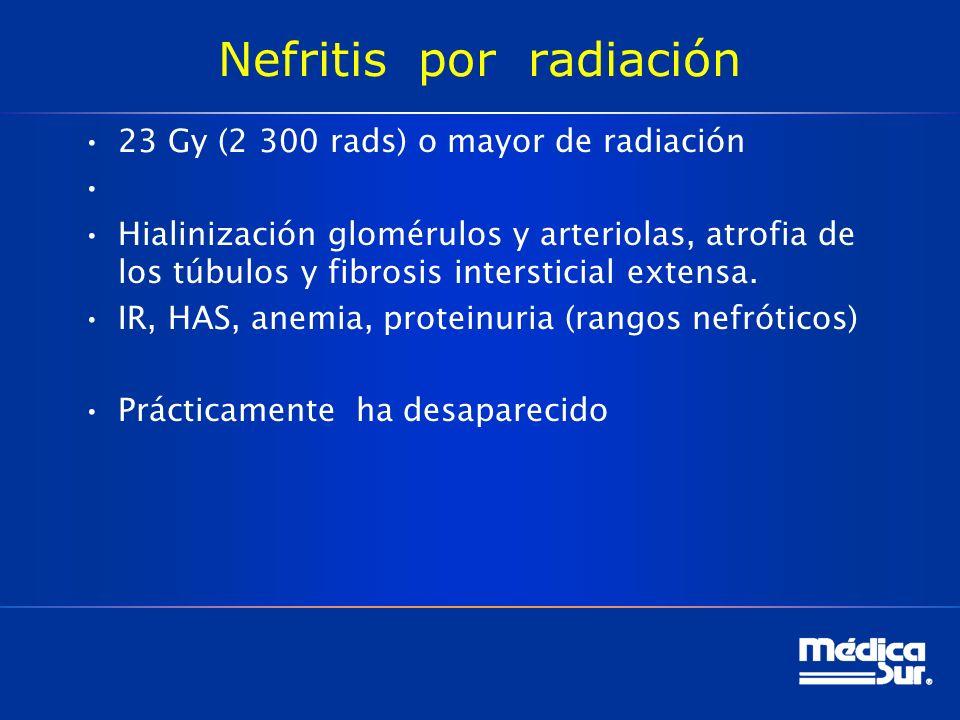 Nefritis por radiación