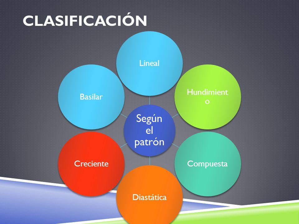 Clasificación Lineal Hundimiento Compuesta Diastática Creciente