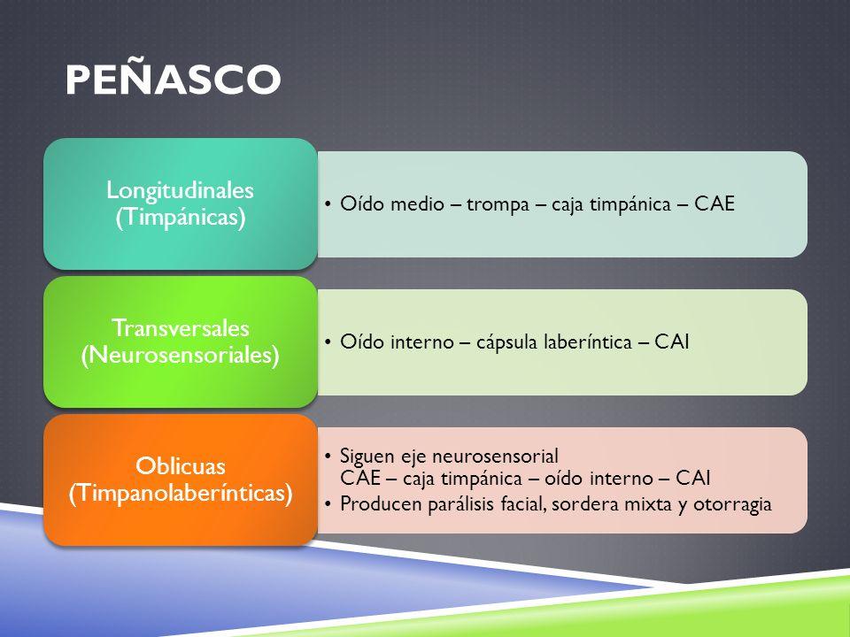 Peñasco Longitudinales (Timpánicas)
