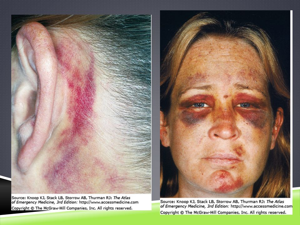Battle Sign. Ecchymosis in the postauricular area develops when the fracture line communicates with the mastoid air cells, resulting in accumulation of blood in the cutaneous tissue. This patient sustained injuries several days prior to presentation.