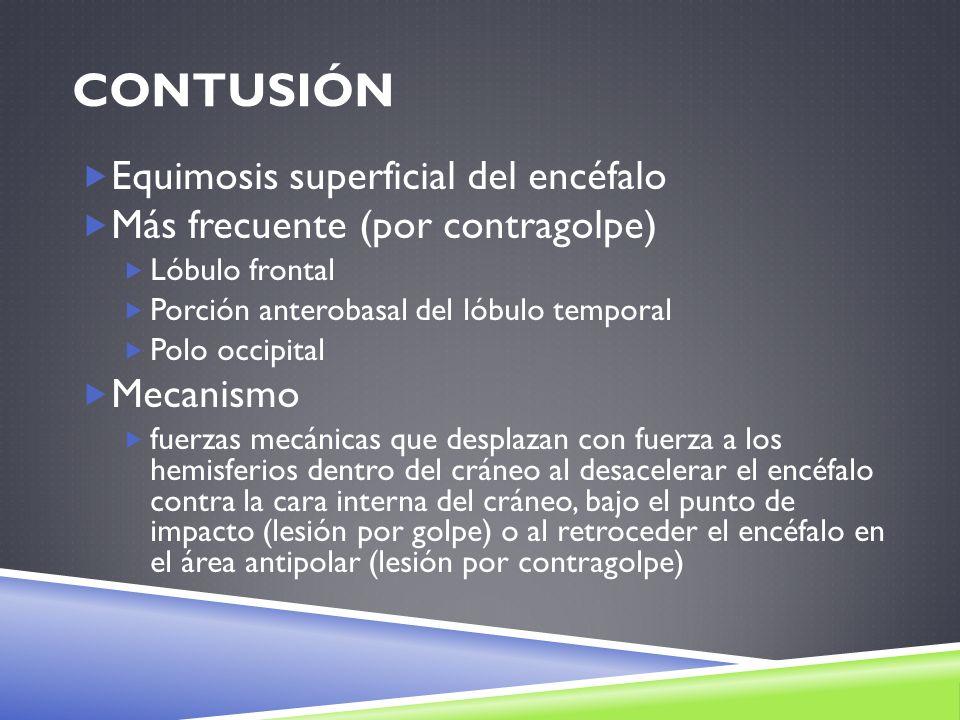 Contusión Equimosis superficial del encéfalo