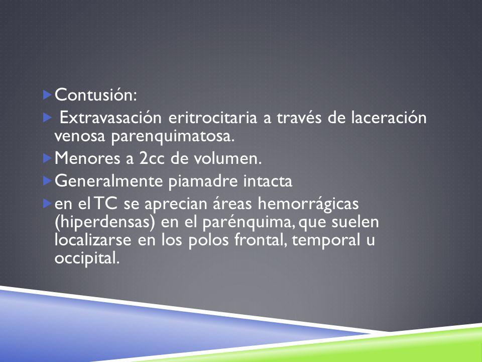 Contusión: Extravasación eritrocitaria a través de laceración venosa parenquimatosa. Menores a 2cc de volumen.