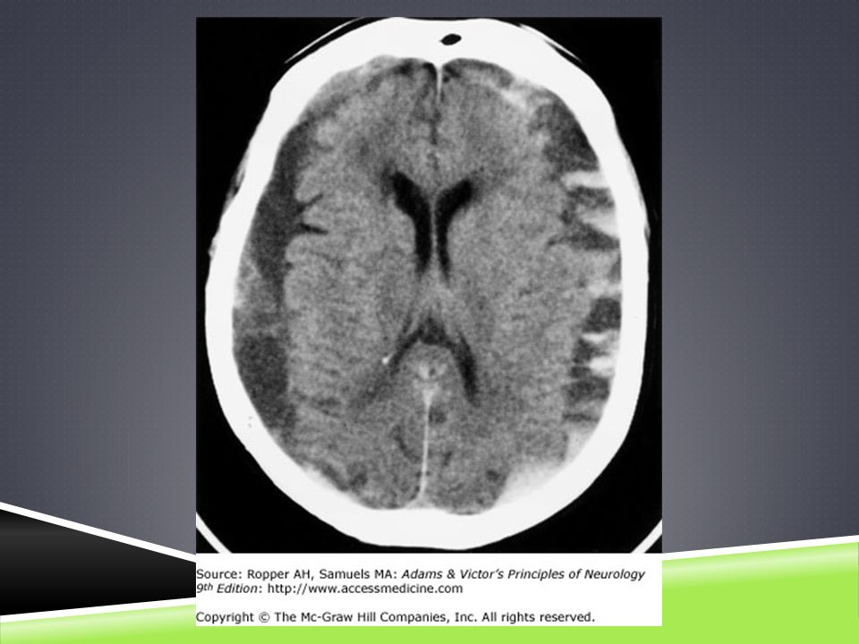Chronic subdural hematomas over both cerebral hemispheres without shift of the ventricular system.