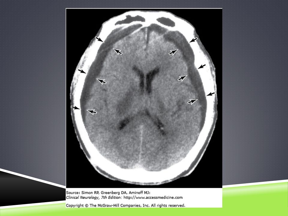 CT scan in chronic subdural hematoma, showing bilateral low-density collections between the inner table of the skull and the cerebral hemispheres (arrows).