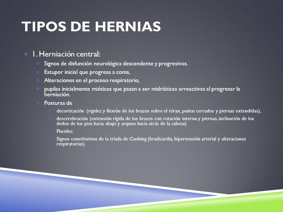Tipos de Hernias 1. Herniación central: