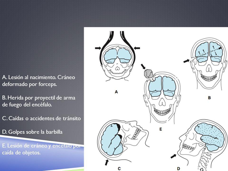 A. Lesión al nacimiento. Cráneo deformado por forceps.