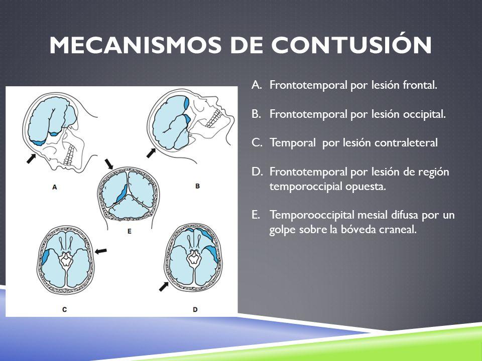 Mecanismos de Contusión
