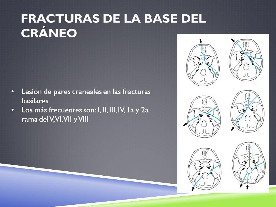 Fracturas de la base del cráneo