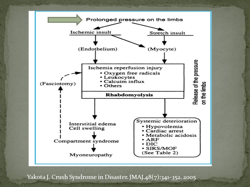Yakota J. Crush Syndrome in Disaster. JMAJ.48(7):341-352. 2005