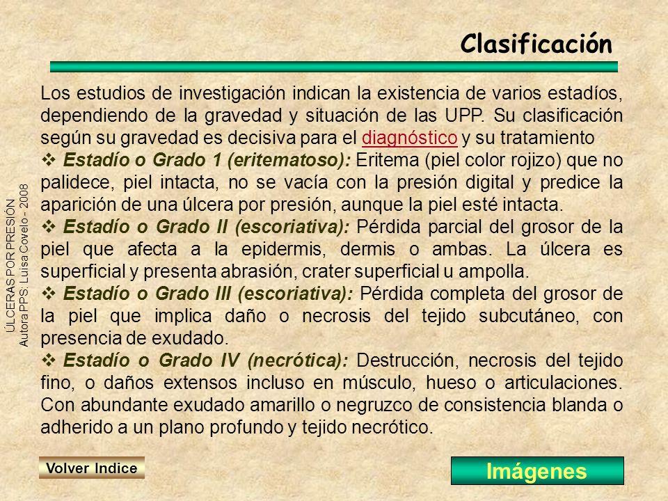 Clasificación Imágenes