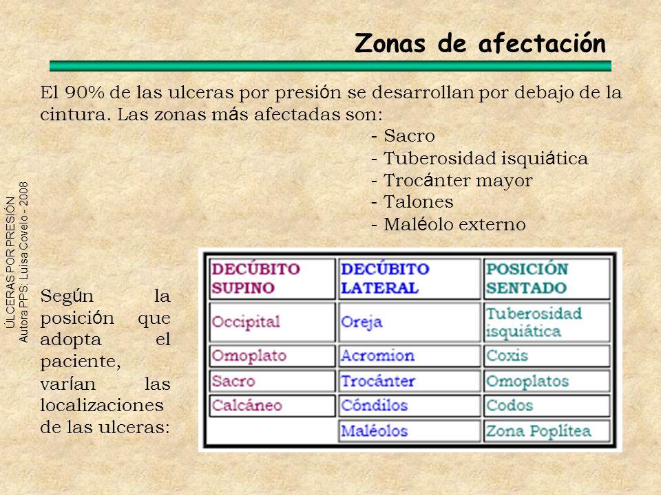 Zonas de afectación