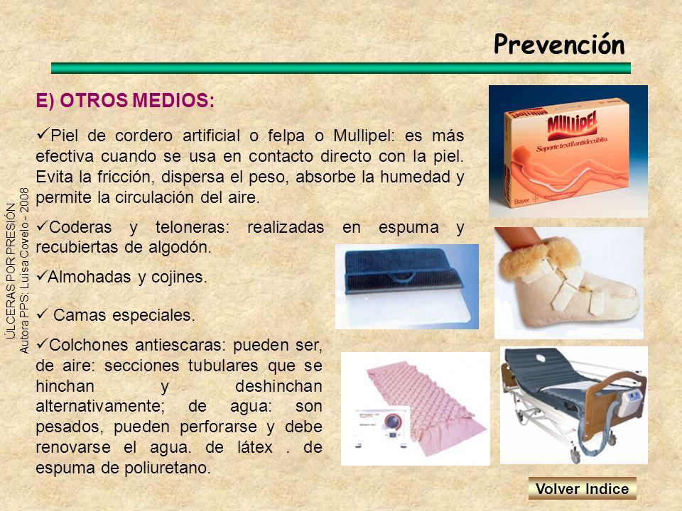Prevención E) OTROS MEDIOS: