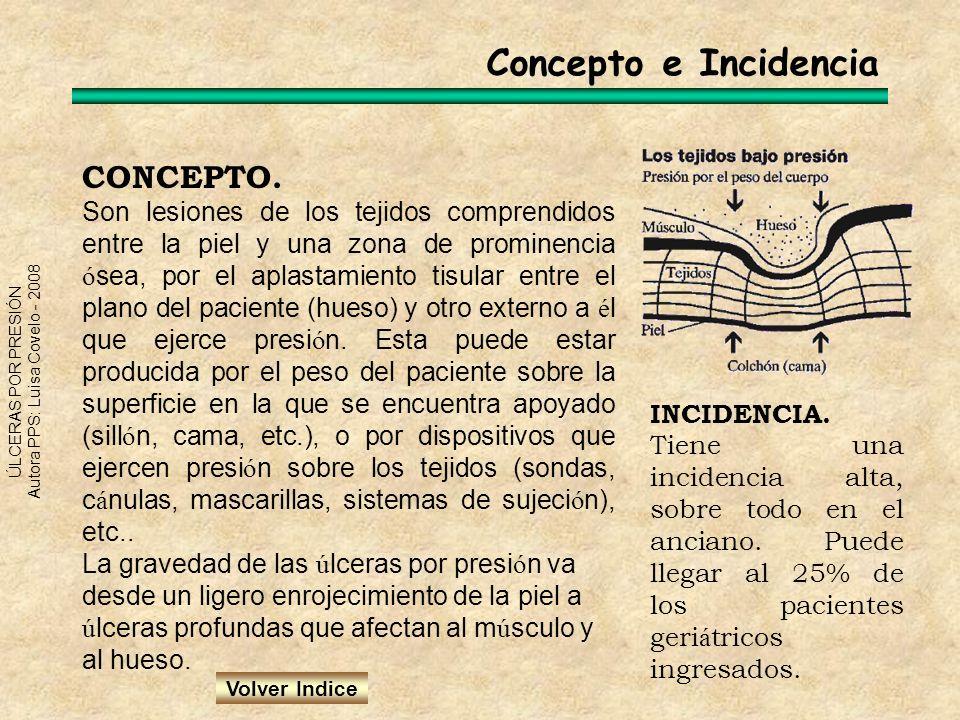 Concepto e Incidencia CONCEPTO.