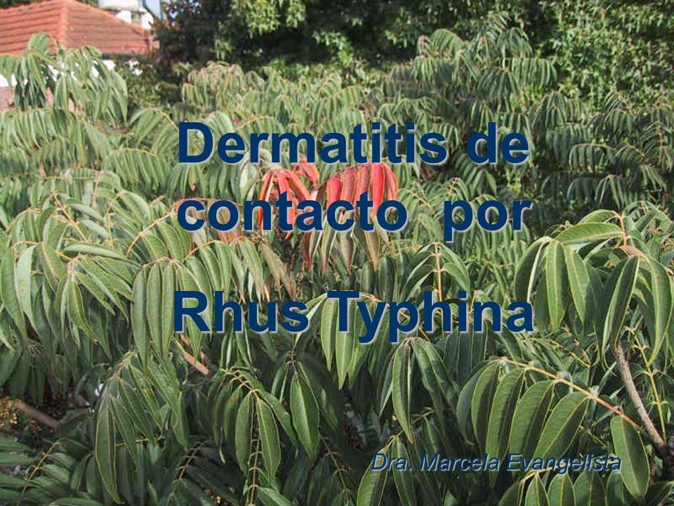 Dermatitis de contacto por