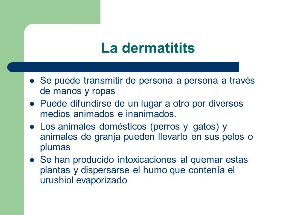 La dermatitits Se puede transmitir de persona a persona a través de manos y ropas.