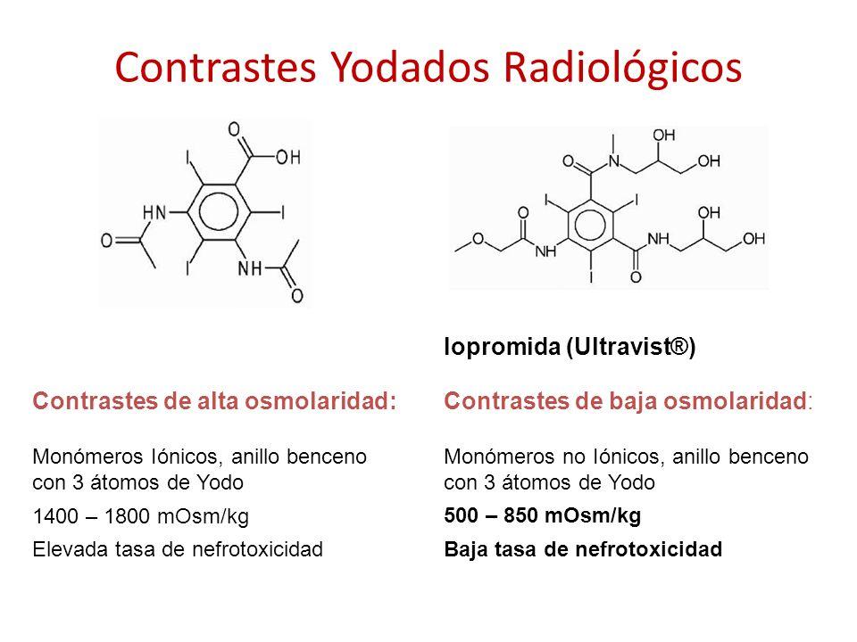 Contrastes Yodados Radiológicos