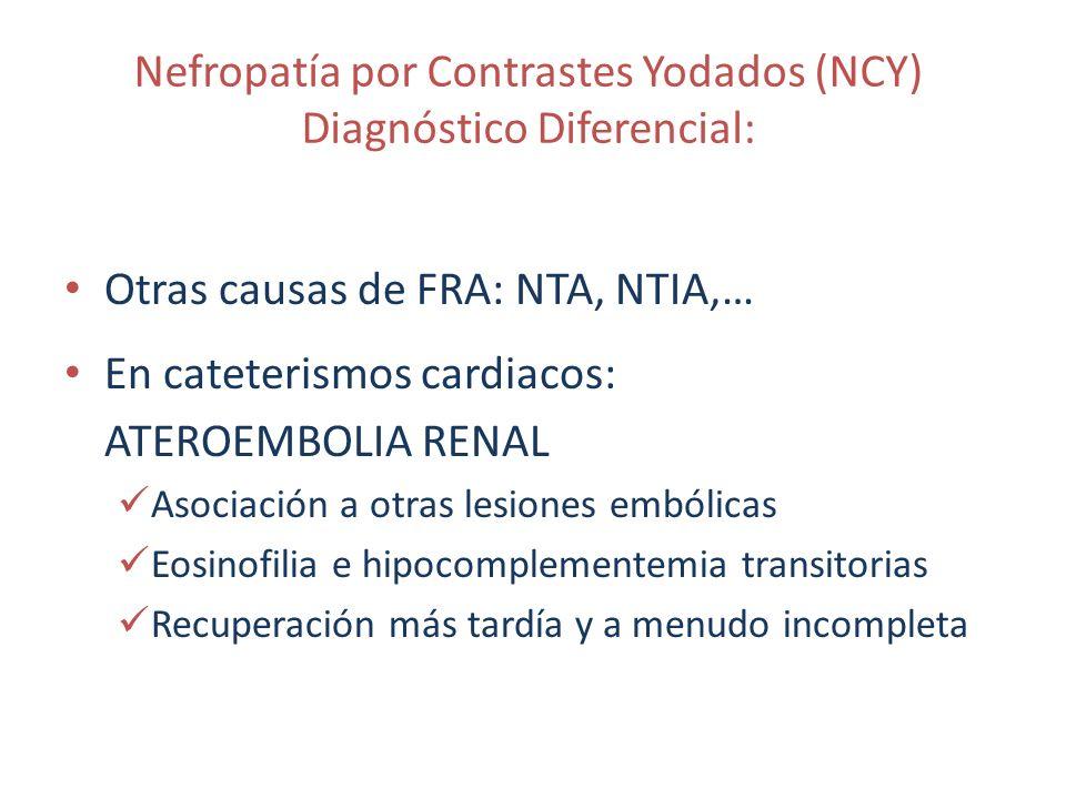 Nefropatía por Contrastes Yodados (NCY) Diagnóstico Diferencial: