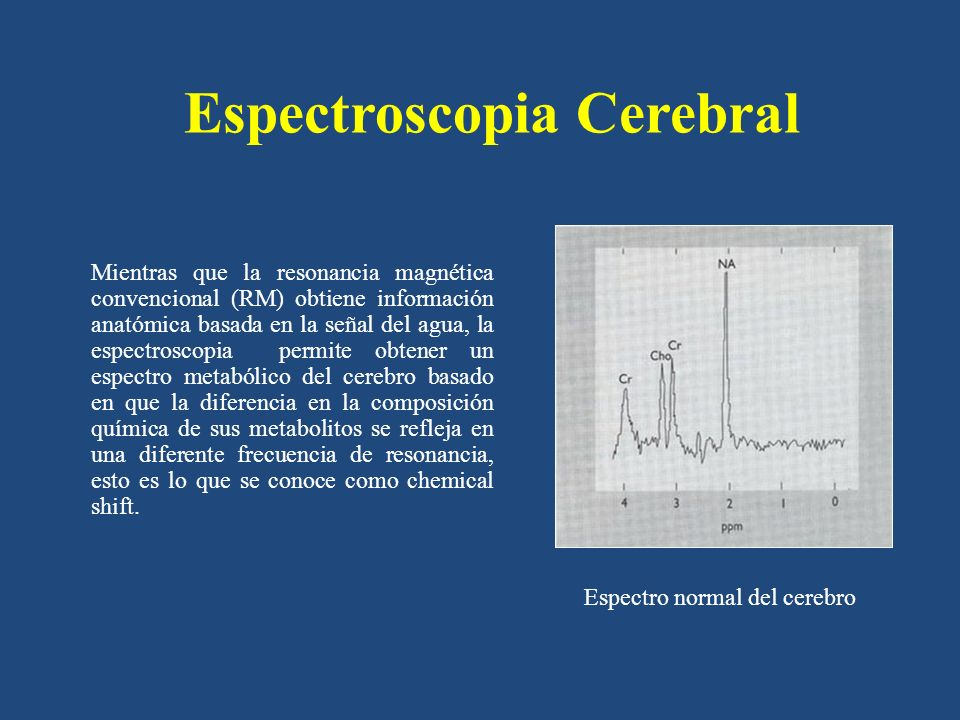Espectroscopia Cerebral