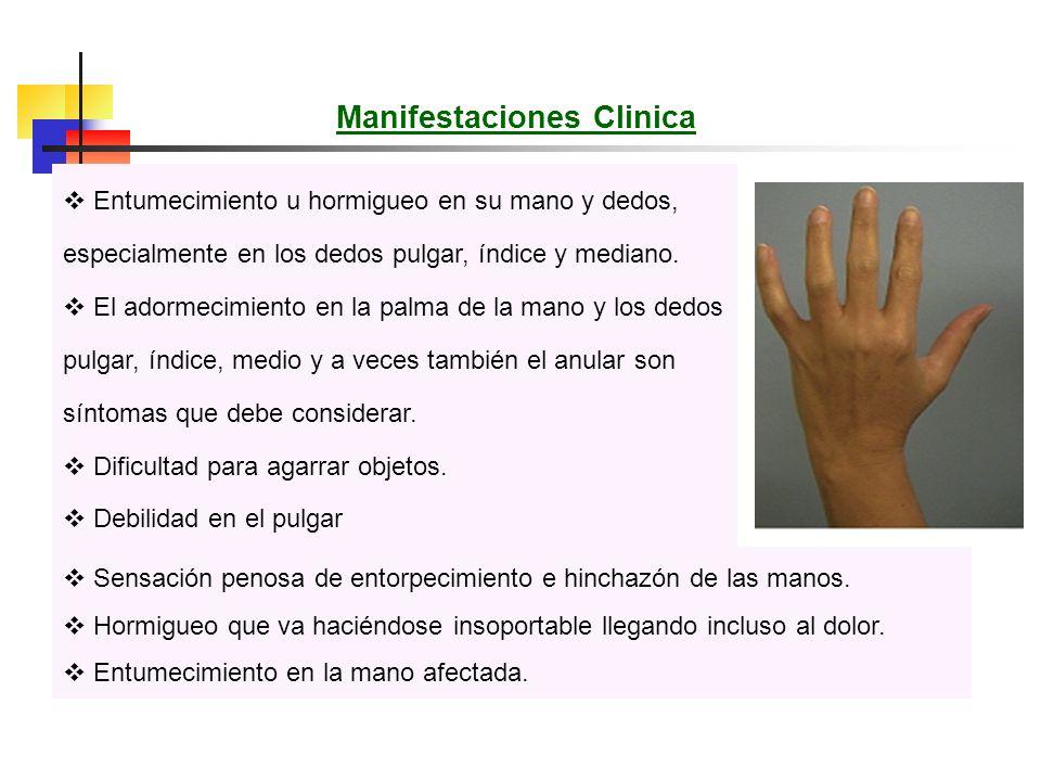Manifestaciones Clinica