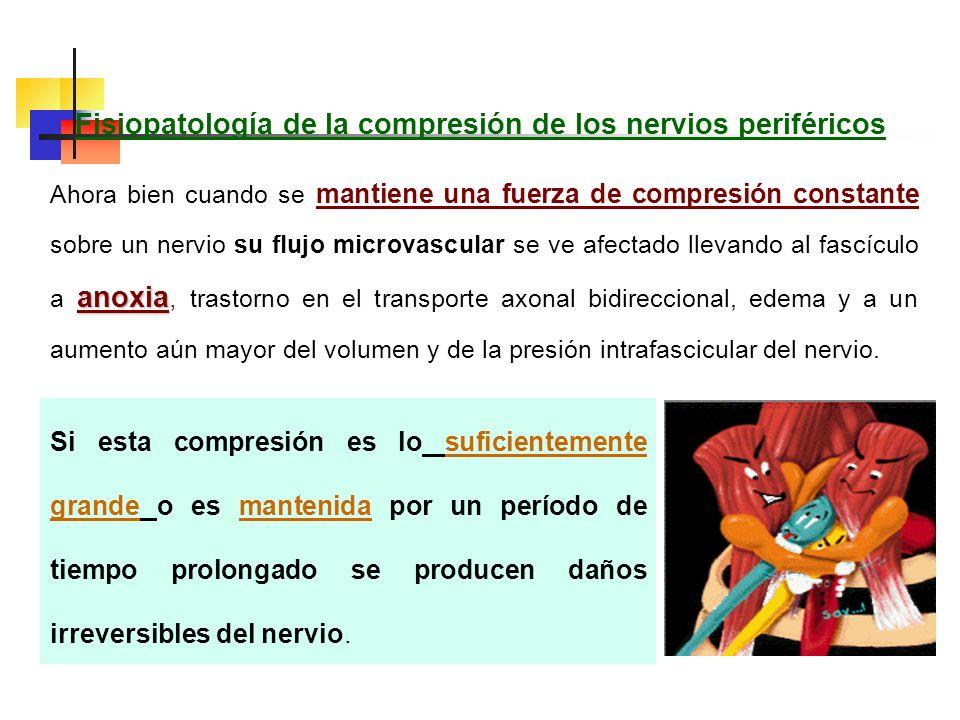Fisiopatología de la compresión de los nervios periféricos