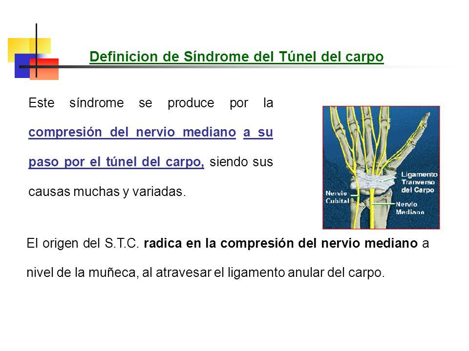 Definicion de Síndrome del Túnel del carpo