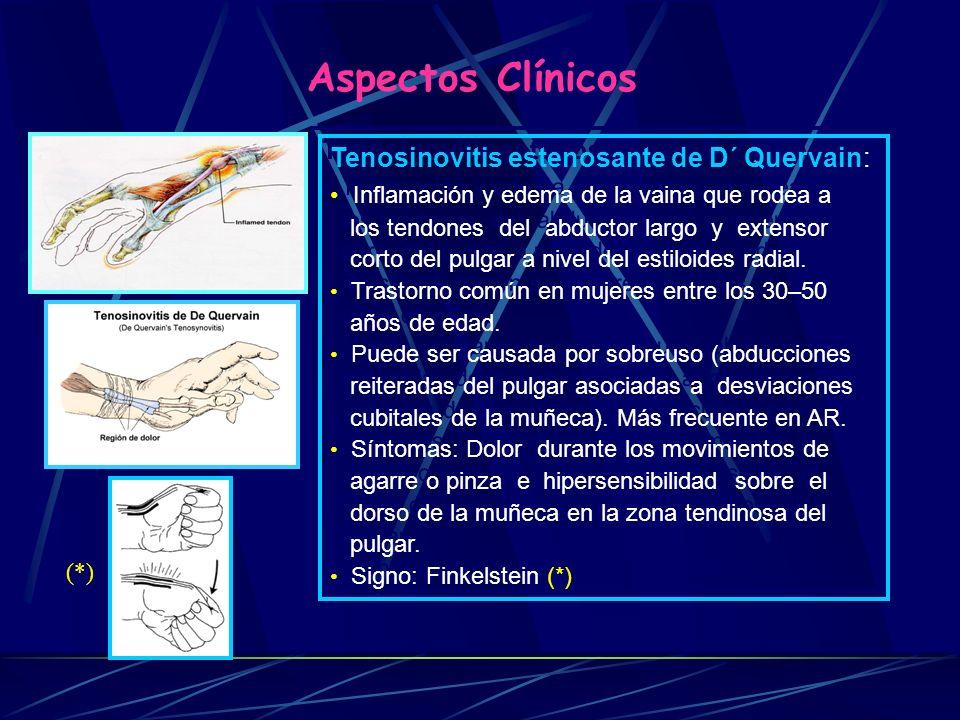 Aspectos Clínicos Tenosinovitis estenosante de D´ Quervain: