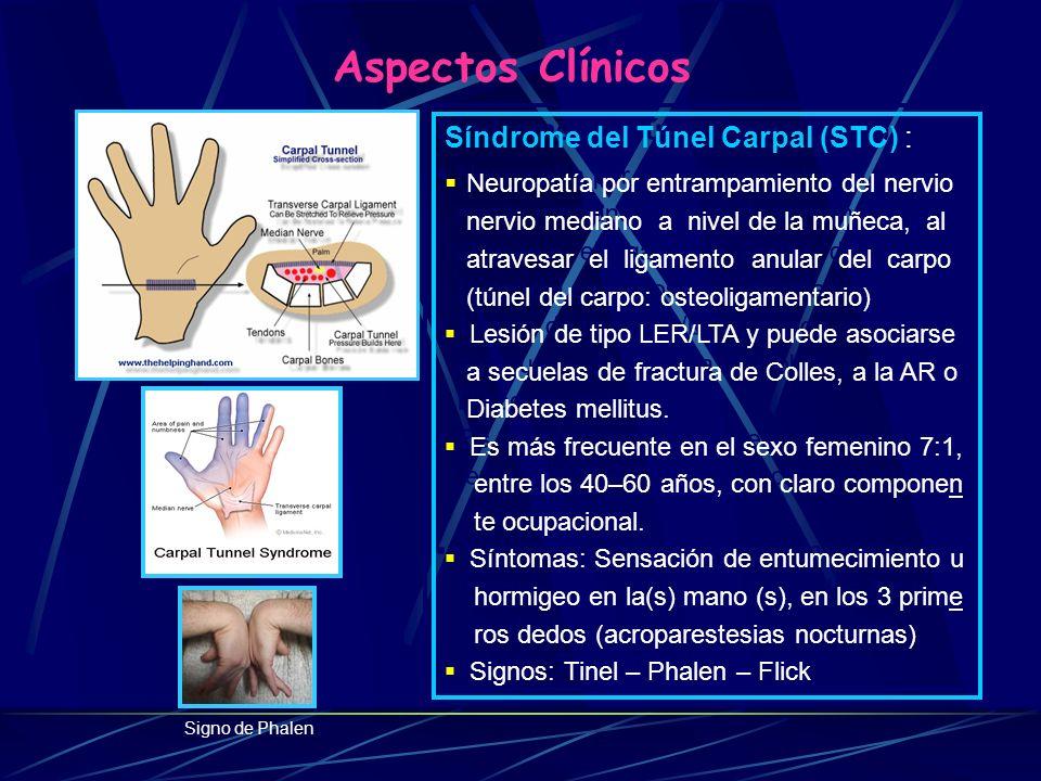 Aspectos Clínicos Neuropatía por entrampamiento del nervio