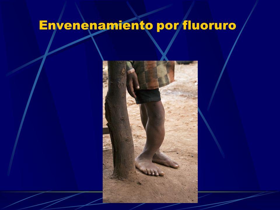 Envenenamiento por fluoruro