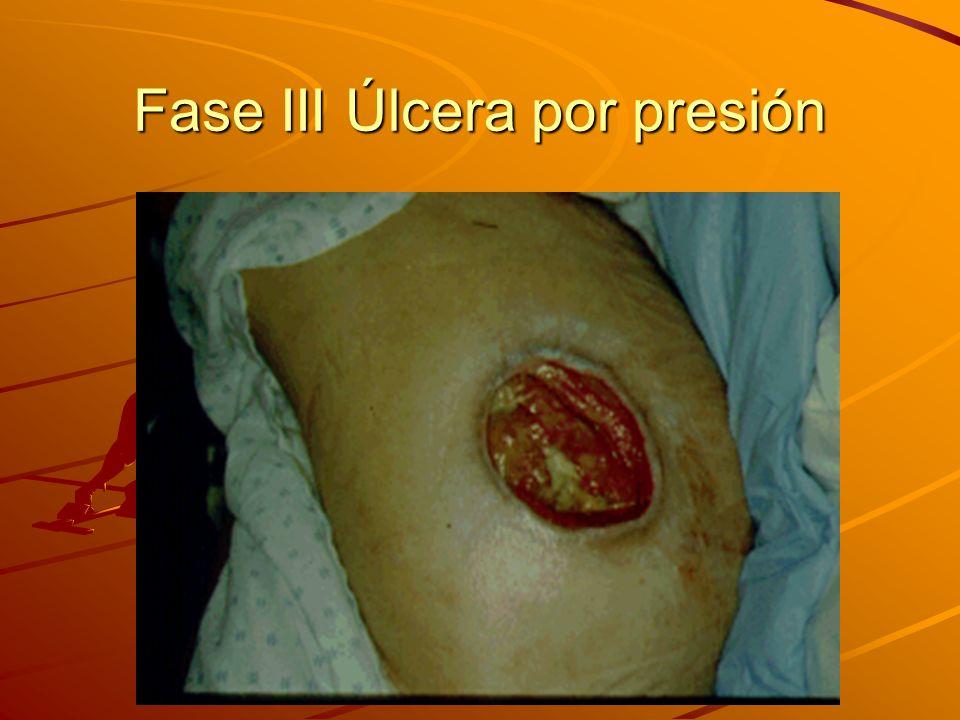 Fase III Úlcera por presión