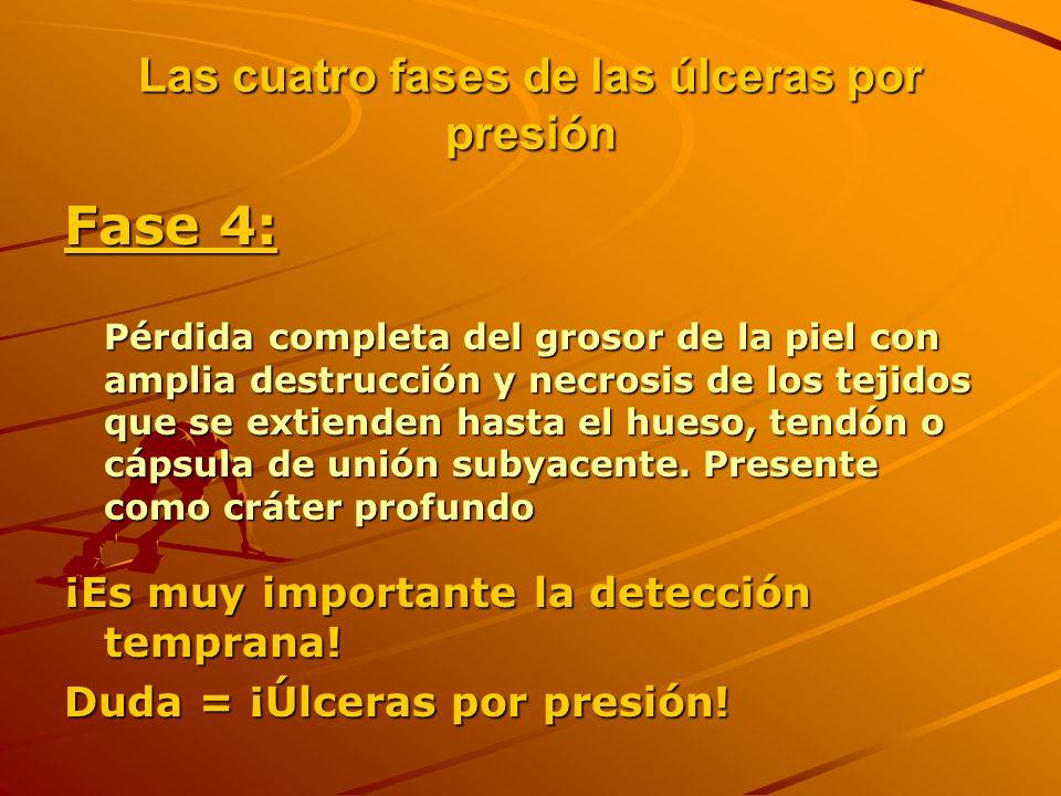 Las cuatro fases de las úlceras por presión
