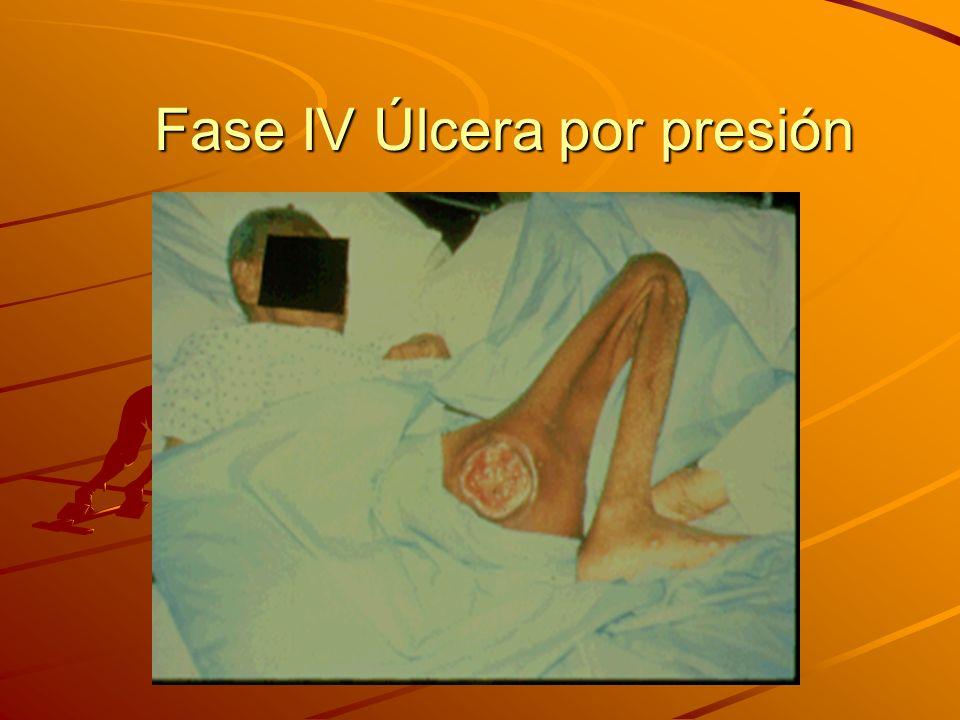 Fase IV Úlcera por presión