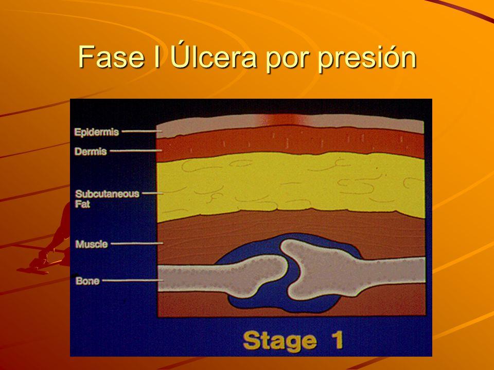 Fase I Úlcera por presión