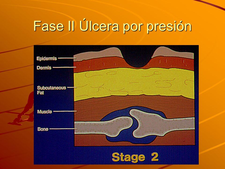 Fase II Úlcera por presión