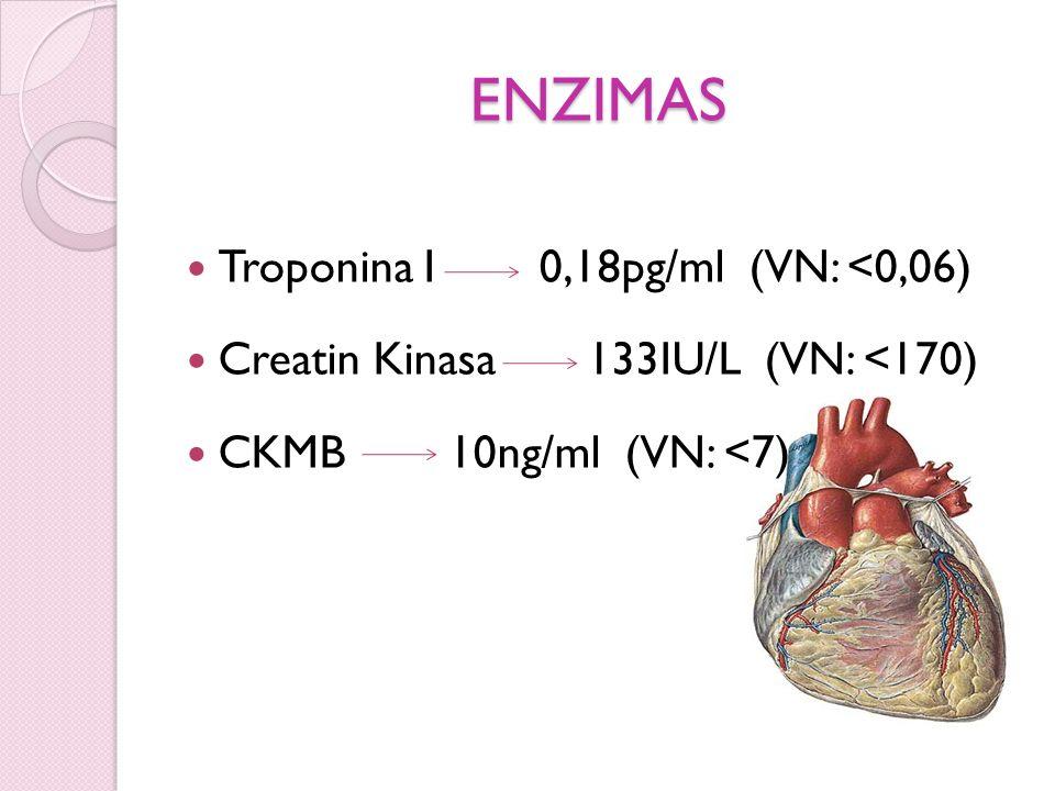 ENZIMAS Troponina I 0,18pg/ml (VN: <0,06)