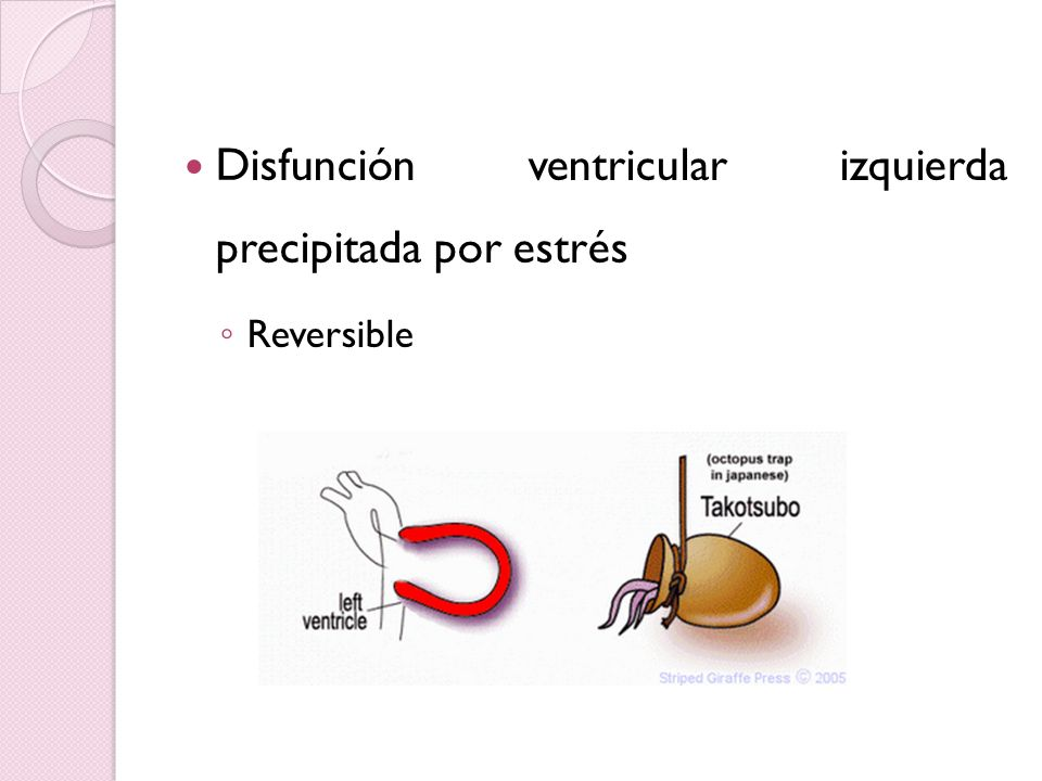 Disfunción ventricular izquierda precipitada por estrés