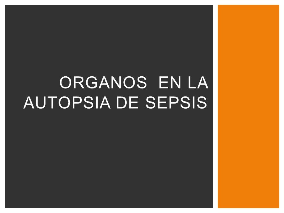 Organos en la autopsia de sepsis