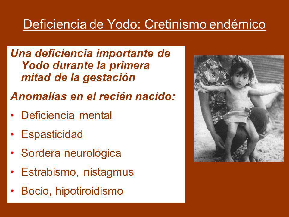 Deficiencia de Yodo: Cretinismo endémico