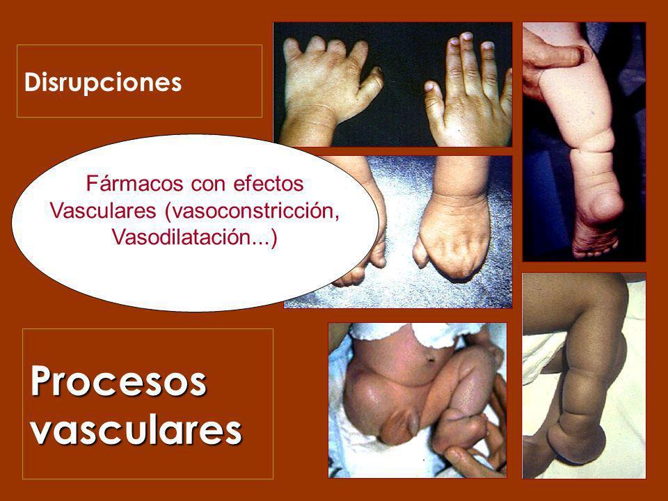 Vasculares (vasoconstricción,