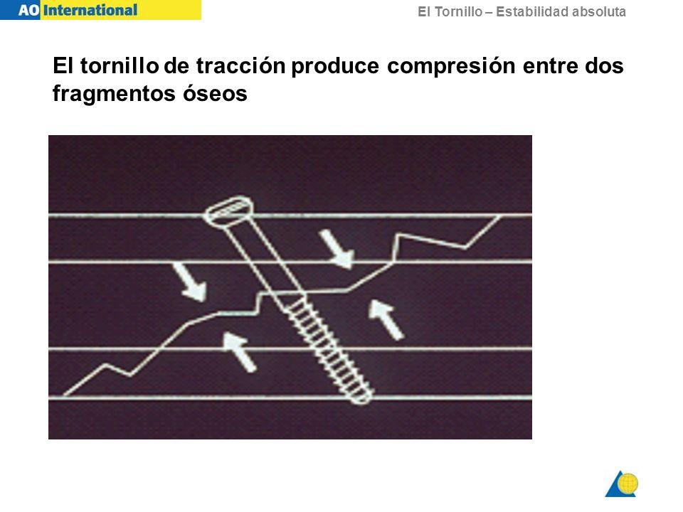 El tornillo de tracción produce compresión entre dos fragmentos óseos