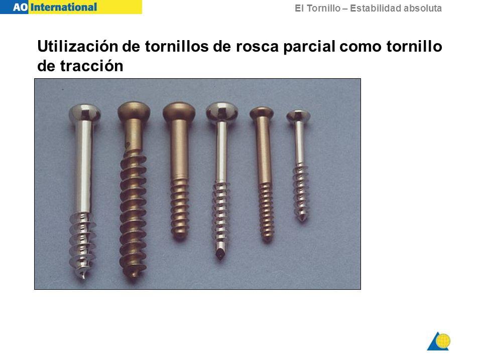 Utilización de tornillos de rosca parcial como tornillo de tracción