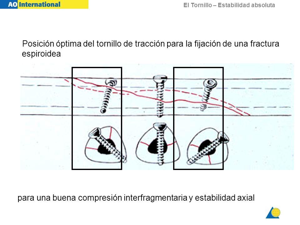 Posición óptima del tornillo de tracción para la fijación de una fractura espiroidea