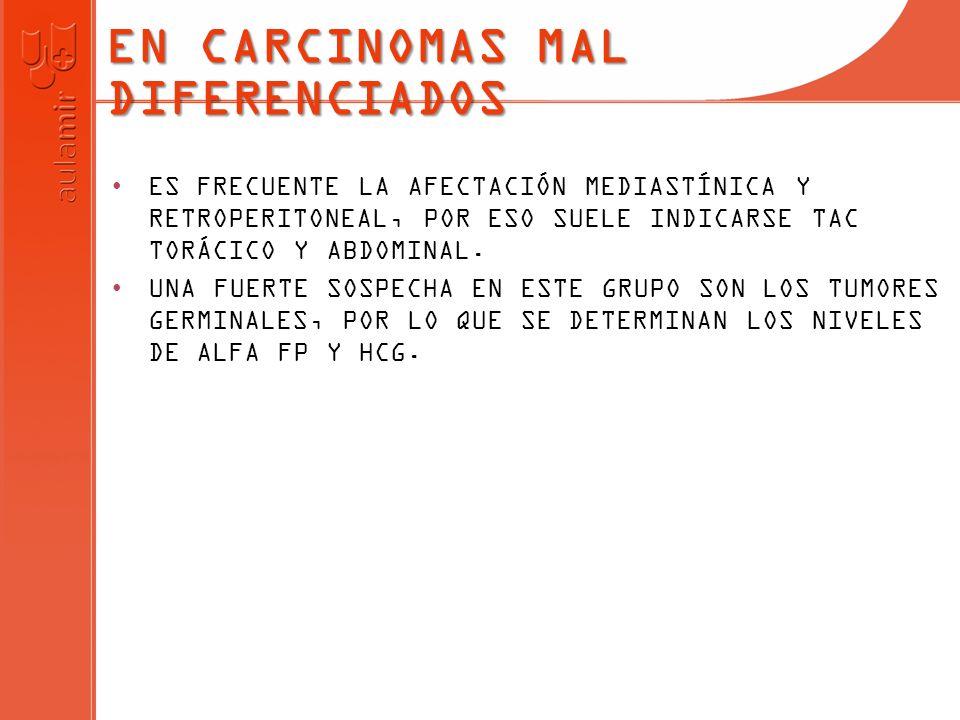 EN CARCINOMAS MAL DIFERENCIADOS