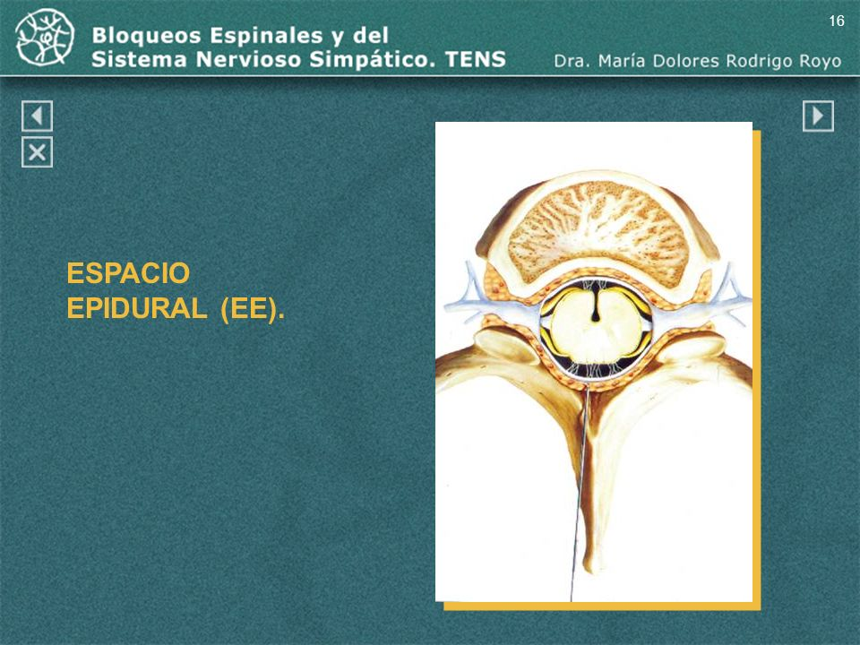 16 ESPACIO EPIDURAL (EE). Espacio epidural (EE).