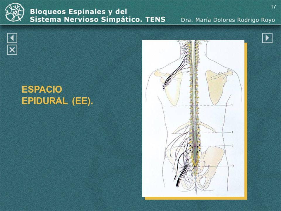 17 ESPACIO EPIDURAL (EE). Espacio epidural (EE).